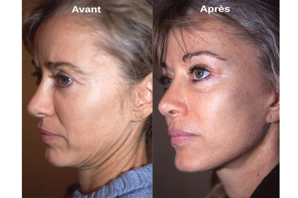 cicatrices lifting cervico facial