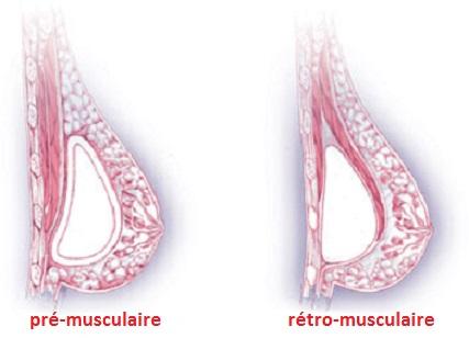 augmentation mammaire en tunisie : positionnement prothèses