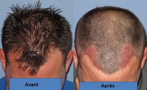 greffe de cheveux en tunisie : photo avant et après