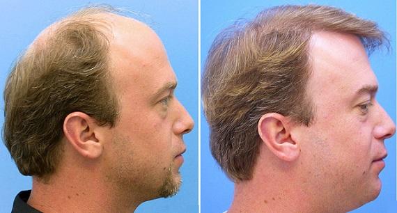 greffe de cheveux en Tunisie: avant/après