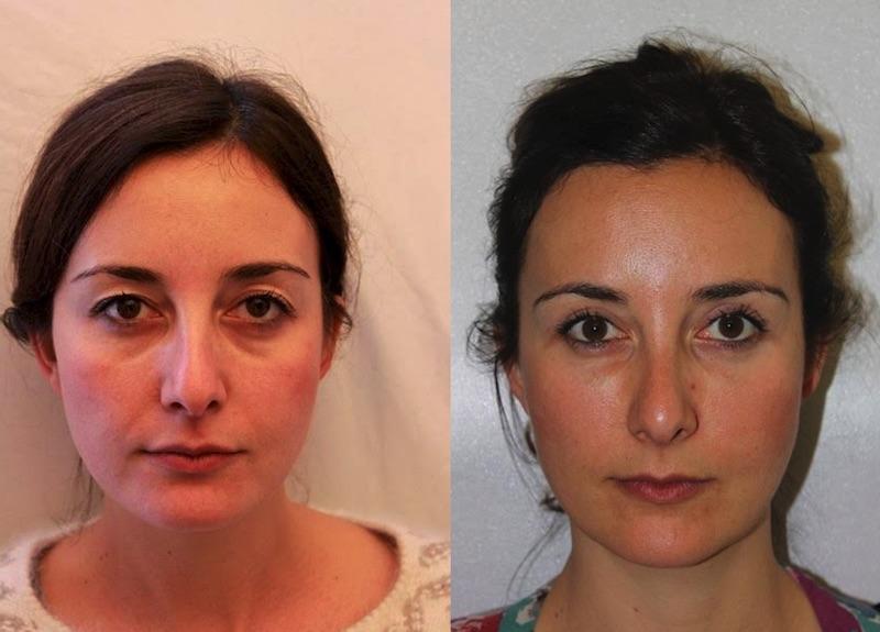 lipofilling-visage-Tunisie