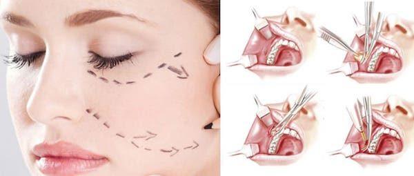 chirurgie-joues
