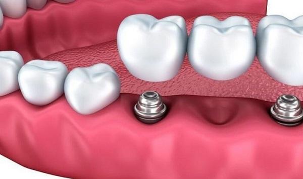 bridge dentaire Tunisie